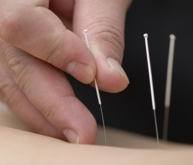 7 Practical Steps to Preventing Disease with Acupuncture